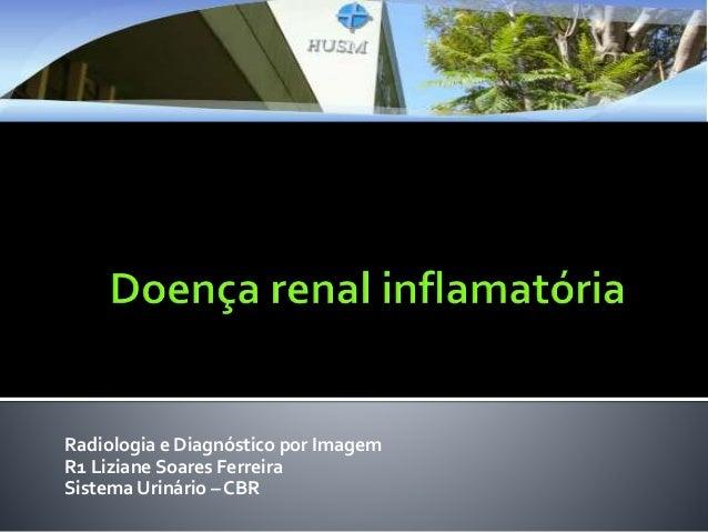 Radiologia e Diagnóstico por Imagem R1 Liziane Soares Ferreira Sistema Urinário – CBR