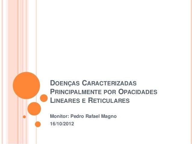 DOENÇAS CARACTERIZADASPRINCIPALMENTE POR OPACIDADESLINEARES E RETICULARESMonitor: Pedro Rafael Magno16/10/2012