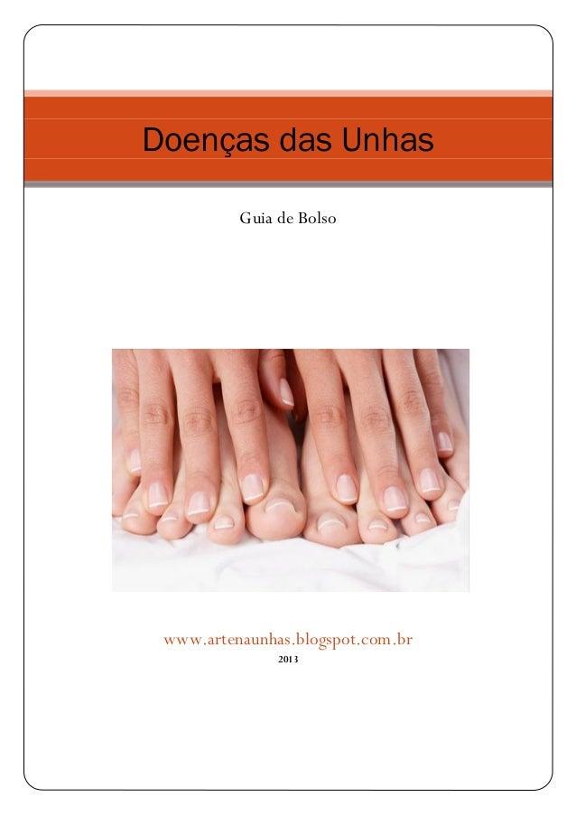 Doenças das Unhas Guia de Bolso www.artenaunhas.blogspot.com.br 2013