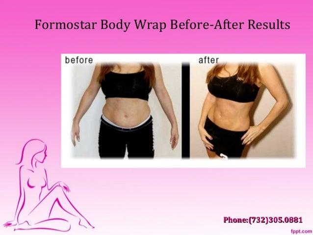 Do Formostar Body Wraps Work