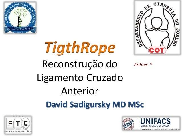 Reconstrução do Ligamento Cruzado Anterior Arthrex ® David Sadigursky MD MSc