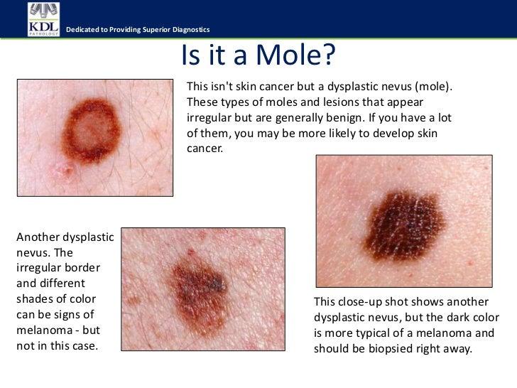 Do i have skin cancer?