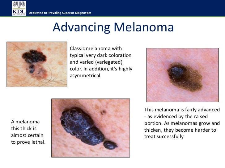 Pathophysiology of skin cancer