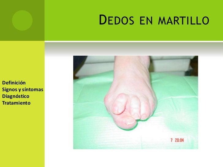 Lujoso Problemas En Las Uñas Dedo En Martillo Bandera - Ideas Para ...