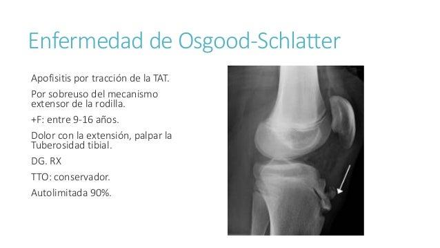 Dolor en las extremidades inferiores en ni os - Dolor en la parte interior de la rodilla ...