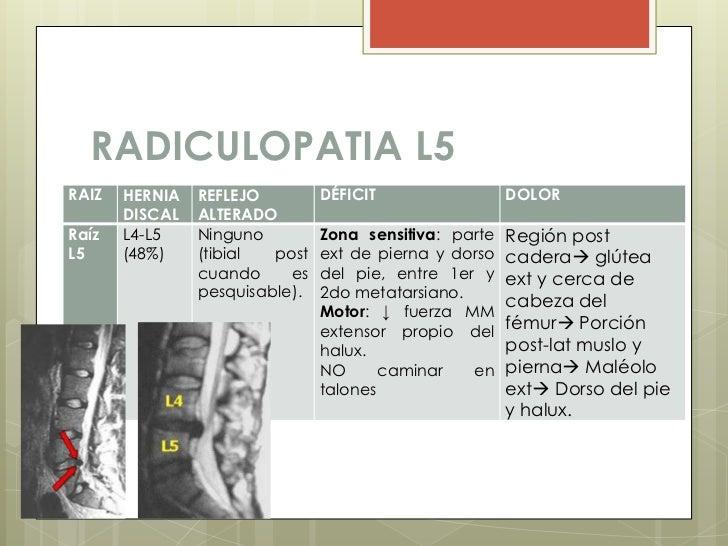 Dolor lumbar - Ejercicios en piscina para hernia discal l5 s1 ...