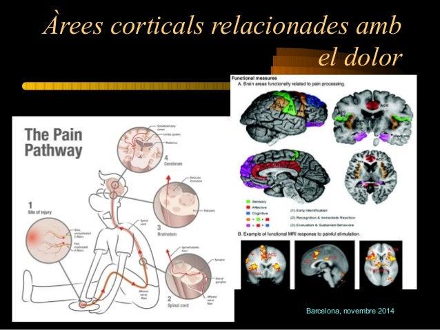 Àrees corticals relacionades amb  el dolor  Barcelona, novembre 2014  Jornada DOLOR i SOCIETAT
