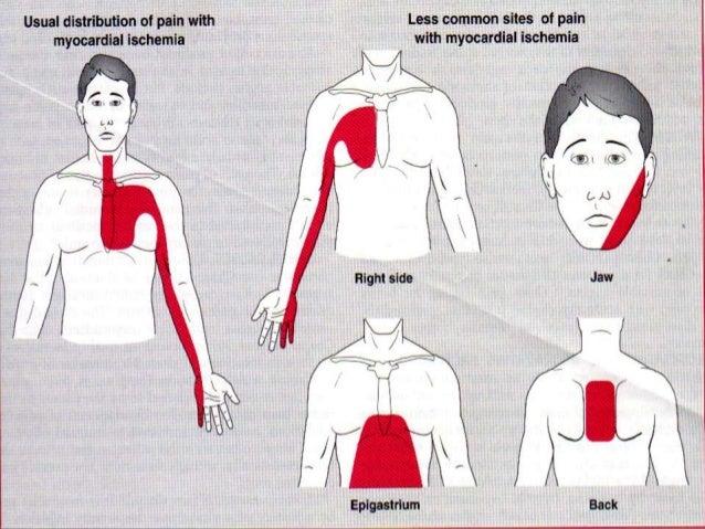 Extensor comun de los dedos del pie dolor