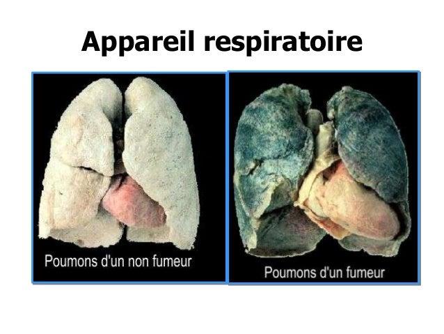 Les préparations de celui-là cesser de fumer