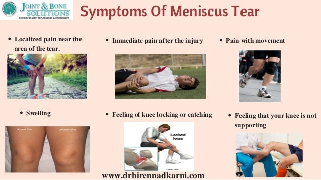 characteristics and diagnosis of meniscal injuries I ntroduction the purpose of clinical examination is to make a correct diagnosis in addition to taking a clinical history and physical examination, prompt assessment of the extent of knee damage may require further investigation 1 several clinical tests have been described to clinically diagnose meniscal and anterior cruciate ligament (acl) injuries.