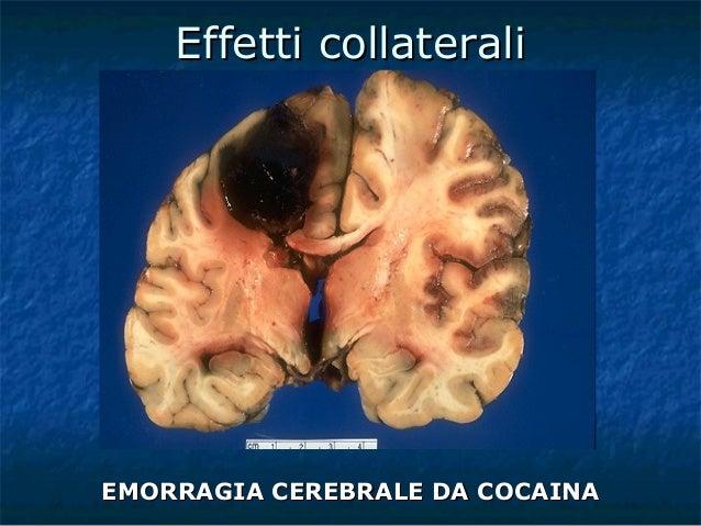 Doping e sostanze dopanti - Sali da bagno droga effetti ...