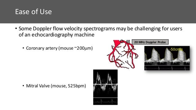 Doppler Flow Velocity Measurements for Cardiovascular Research