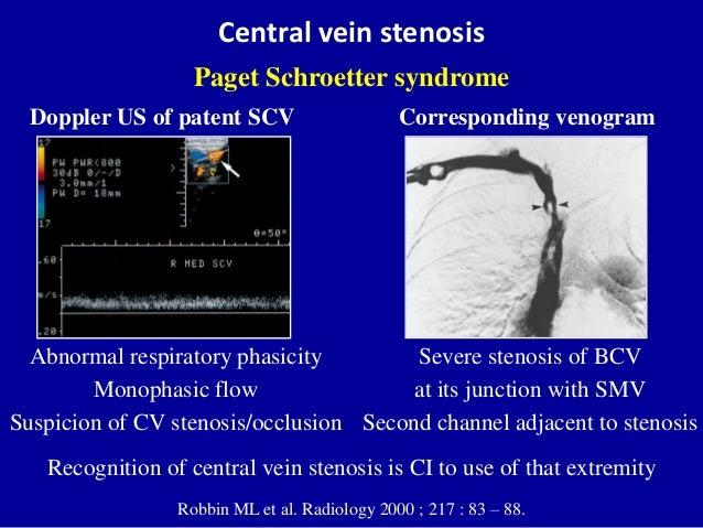 Doppler ultrasound of A-V access for hemodialysis