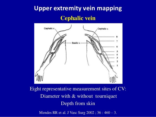 doppler ultrasound of a-v access for hemodialysis, Cephalic Vein