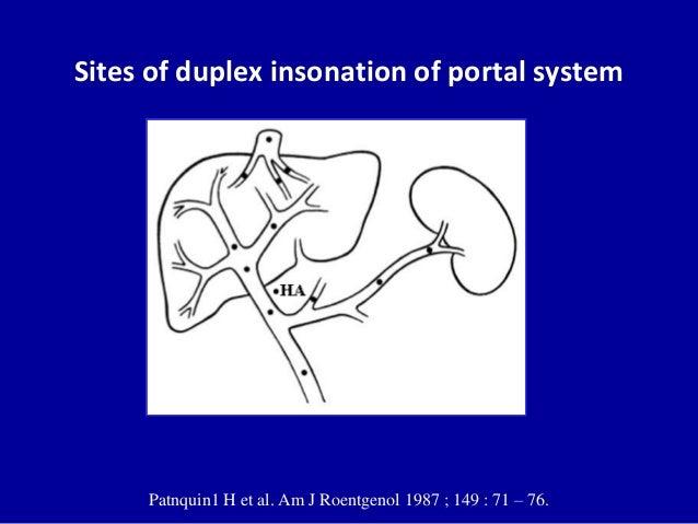 Doppler Ultrasound Of The Portal System Normal Findings