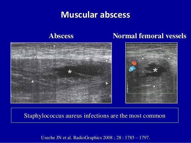 Muscular abscessUseche JN et al. RadioGraphics 2008 ; 28 : 1785 – 1797.Normal femoral vesselsAbscessStaphylococcus aureus ...