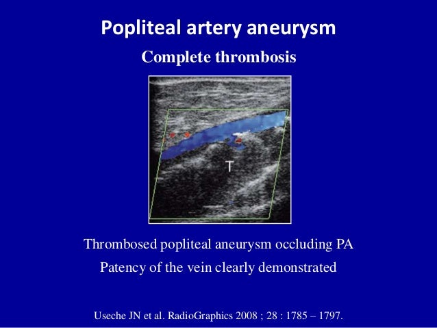 Popliteal artery aneurysmComplete thrombosisUseche JN et al. RadioGraphics 2008 ; 28 : 1785 – 1797.Thrombosed popliteal an...