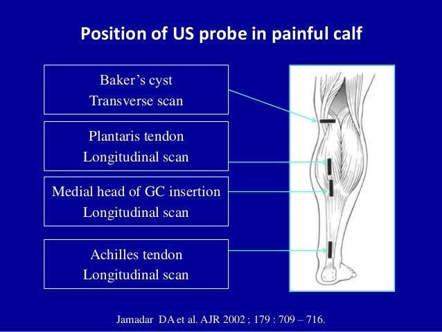 Position of US probe in painful calfJamadar DA et al. AJR 2002 ; 179 : 709 – 716.Baker's cystTransverse scanPlantaris tend...