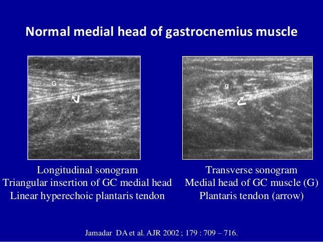 Normal medial head of gastrocnemius muscleJamadar DA et al. AJR 2002 ; 179 : 709 – 716.Longitudinal sonogramTriangular ins...