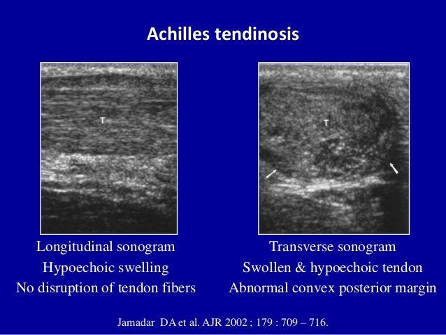 Achilles tendinosisJamadar DA et al. AJR 2002 ; 179 : 709 – 716.Transverse sonogramSwollen & hypoechoic tendonAbnormal con...