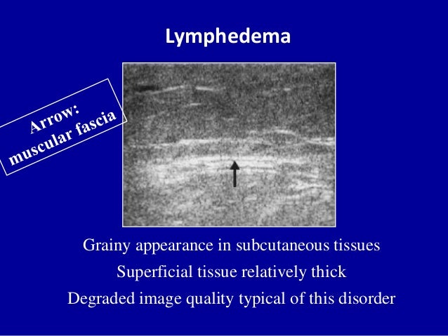 LymphedemaGrainy appearance in subcutaneous tissuesSuperficial tissue relatively thickDegraded image quality typical of th...