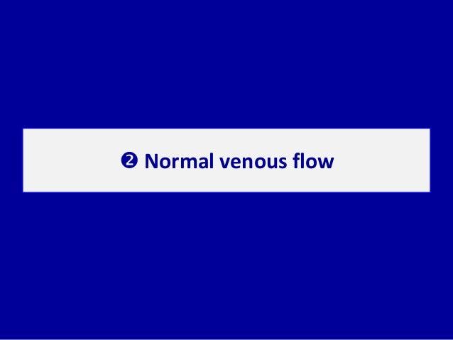  Normal venous flow