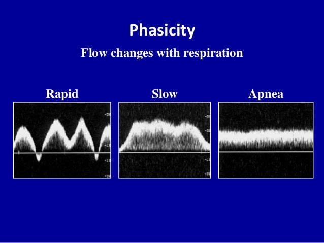 PhasicityFlow changes with respirationSlow ApneaRapid