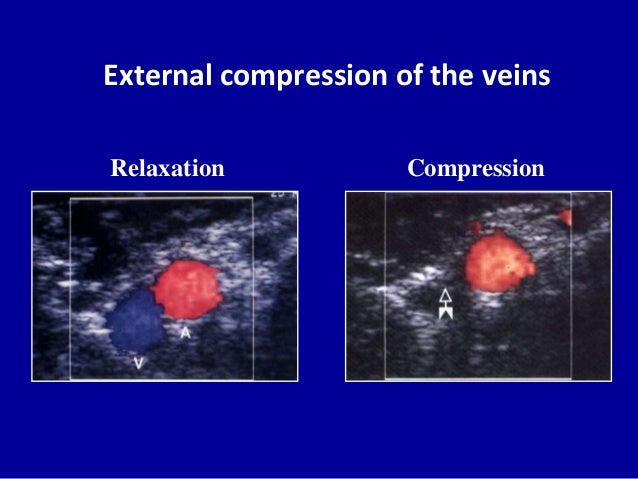 External compression of the veinsCompressionRelaxation