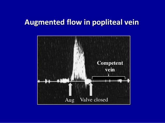Augmented flow in popliteal veinAug Valve closedCompetentvein