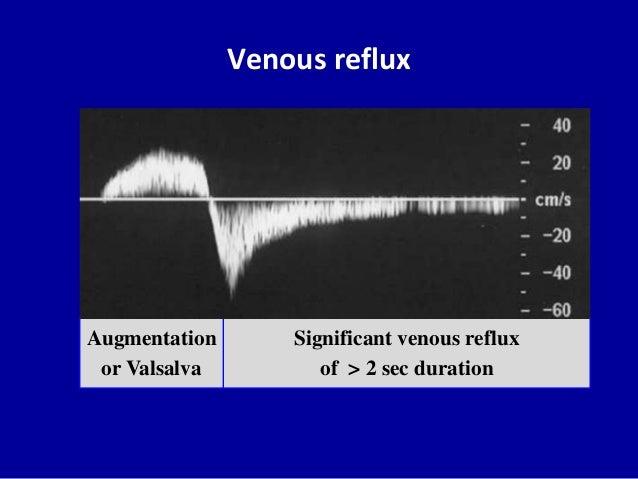 Venous refluxSignificant venous refluxof > 2 sec durationAugmentationor Valsalva