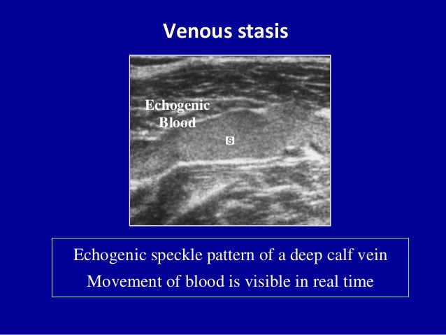Venous stasisEchogenic speckle pattern of a deep calf veinMovement of blood is visible in real timeEchogenicBlood