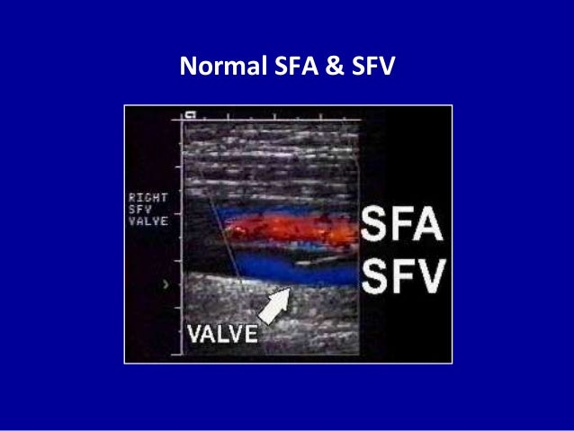 Normal SFA & SFV