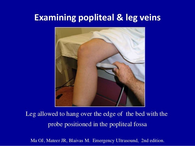 Examining popliteal & leg veinsLeg allowed to hang over the edge of the bed with theprobe positioned in the popliteal foss...