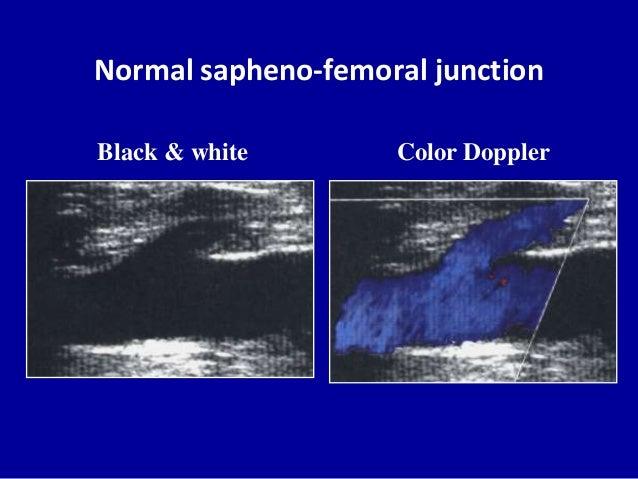 Normal sapheno-femoral junctionColor DopplerBlack & white