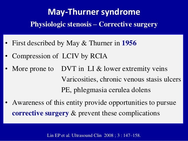 May-Thurner syndromePhysiologic stenosis – Corrective surgery• First described by May & Thurner in 1956• Compression of LC...
