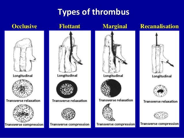 Doppler ultrasound in deep vein thrombosis