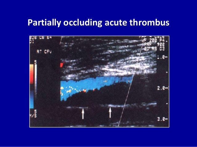 Partially occluding acute thrombus