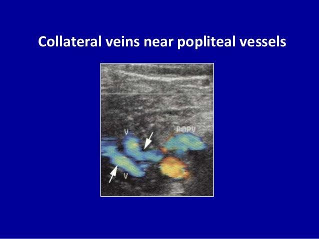 Doppler ultrasound exam of an arm or leg: MedlinePlus ...