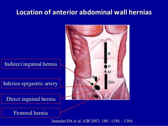 Location of anterior abdominal wall herniasJamadar DA et al. AJR 2007; 188 : 1356 – 1364.Direct inguinal herniaIndirect in...