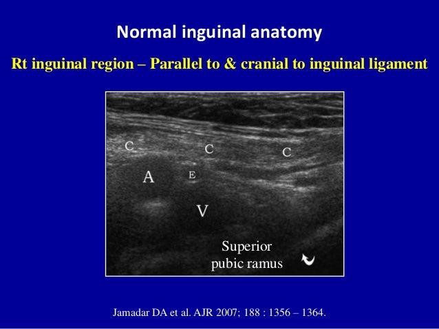 Normal inguinal anatomyJamadar DA et al. AJR 2007; 188 : 1356 – 1364.Rt inguinal region – Parallel to & cranial to inguina...