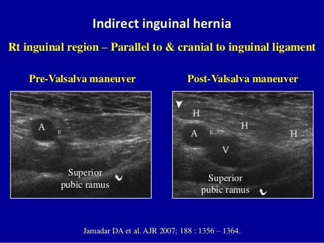 Indirect inguinal herniaJamadar DA et al. AJR 2007; 188 : 1356 – 1364.Rt inguinal region – Parallel to & cranial to inguin...
