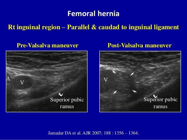 Femoral herniaSuperior pubicramusPre-Valsalva maneuverSuperior pubicramusPost-Valsalva maneuverJamadar DA et al. AJR 2007;...