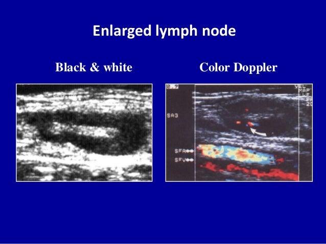 Enlarged lymph nodeBlack & white Color Doppler
