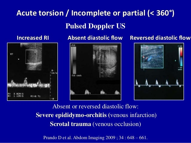 testicular torsion ultrasound. two weeks later; 62. acute torsion testicular ultrasound