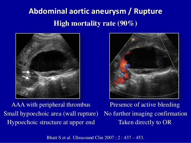 86 Aortic Thrombosis Color And Spectral Doppler Imaging