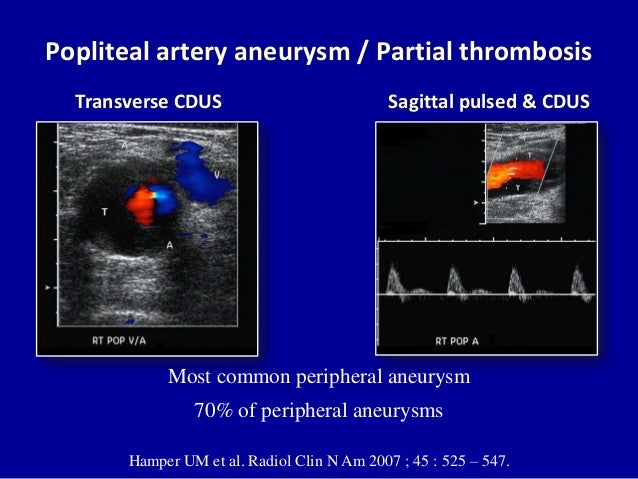 lower limb arterial doppler pdf
