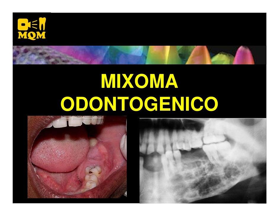 MIXOMA ODONTOGENICO