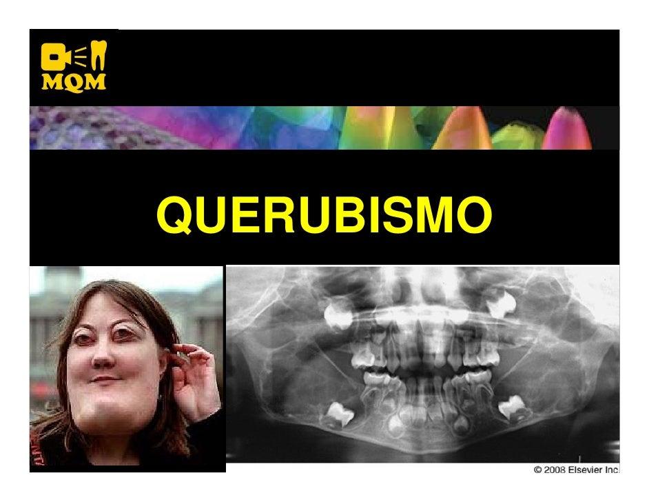 QUERUBISMO