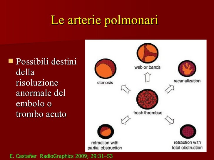 Ipertensione Polmonare : imaging radiologico