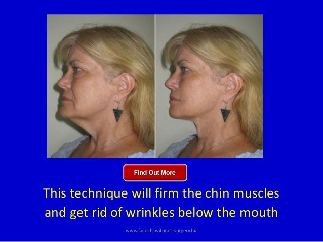 how to get rid of a cleft chin without surgery